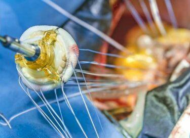 Hartklep hart operatie